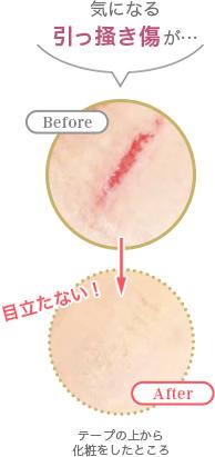 切り傷・ひっかき跡の上からメイク 利用前利用後